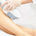 intense pulsed light hair removal